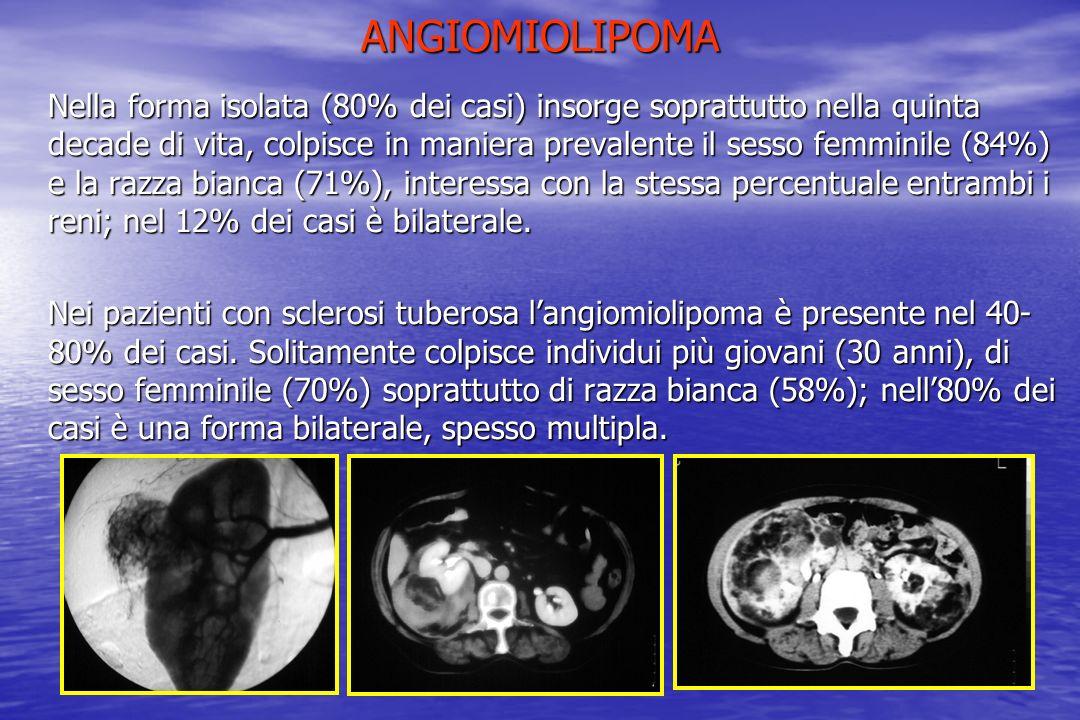 ANGIOMIOLIPOMA Nella forma isolata (80% dei casi) insorge soprattutto nella quinta decade di vita, colpisce in maniera prevalente il sesso femminile (