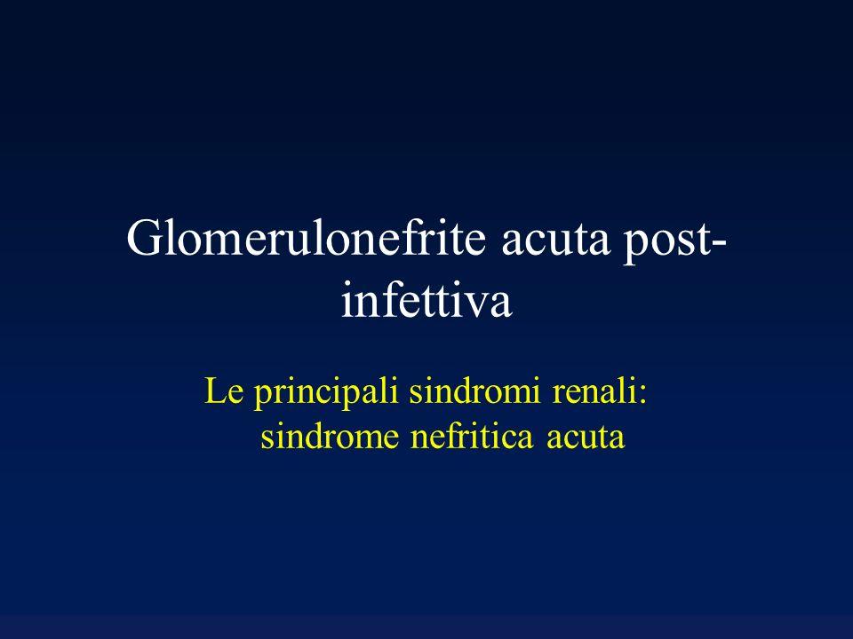 Glomerulonefrite acuta post-infettiva Caratterizzata dalla comparsa improvvisa di ematuria glomerulare (cilindri eritrocitari, emazie dismorfiche) e proteinuria.