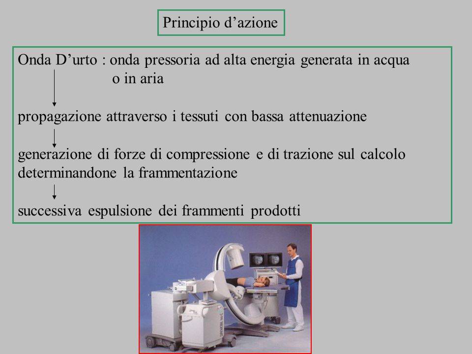 Onda Durto : onda pressoria ad alta energia generata in acqua o in aria propagazione attraverso i tessuti con bassa attenuazione generazione di forze