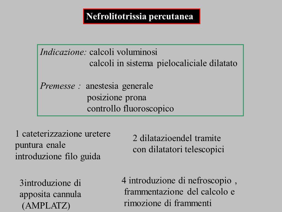 Indicazione: calcoli voluminosi calcoli in sistema pielocaliciale dilatato Premesse : anestesia generale posizione prona controllo fluoroscopico Nefro