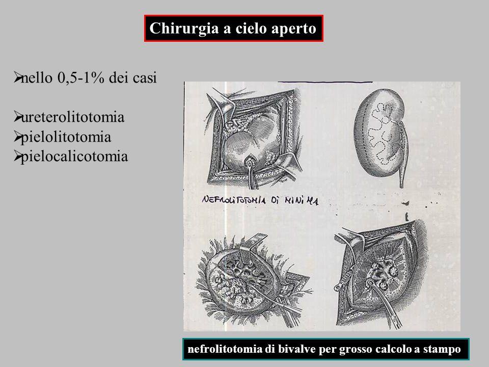 nello 0,5-1% dei casi ureterolitotomia pielolitotomia pielocalicotomia Chirurgia a cielo aperto nefrolitotomia di minima nefrolitotomia di bivalve per