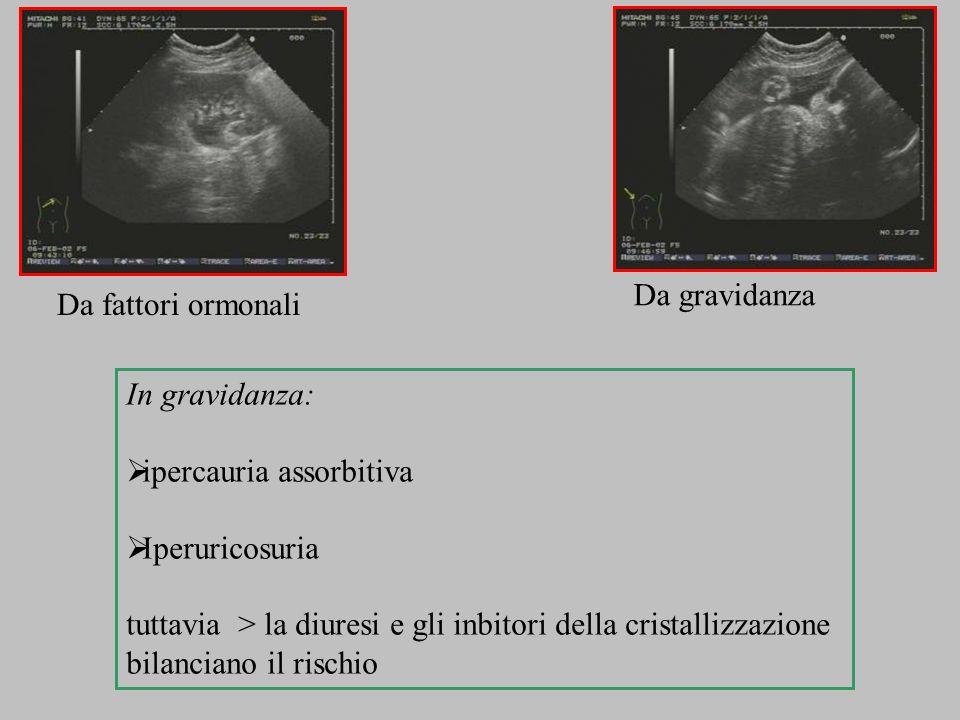 In gravidanza: ipercauria assorbitiva Iperuricosuria tuttavia > la diuresi e gli inbitori della cristallizzazione bilanciano il rischio Da fattori orm