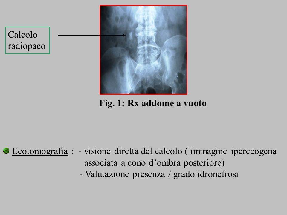 Ecotomografia : - visione diretta del calcolo ( immagine iperecogena associata a cono dombra posteriore) - Valutazione presenza / grado idronefrosi Ca