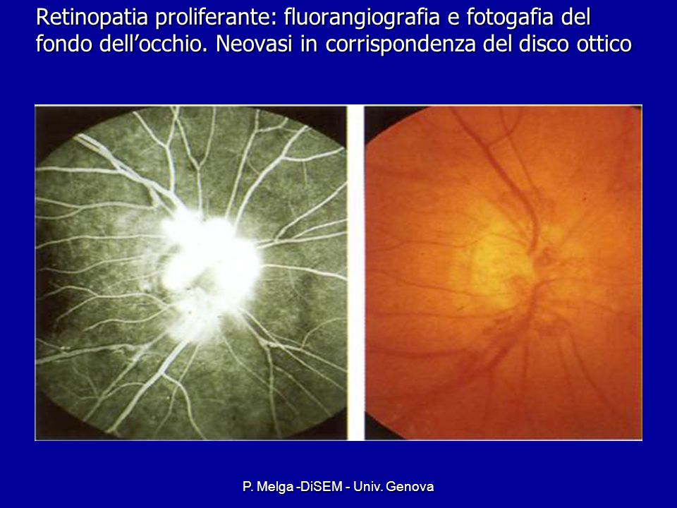 P. Melga -DiSEM - Univ. Genova PDR Clinical Findings Clinical Findings –Ischemia induced neovascularization at the optic disk (NVD) at the optic disk