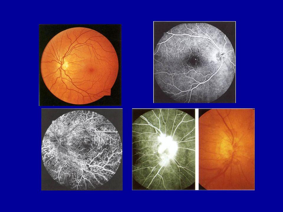 P. Melga -DiSEM - Univ. Genova Classification and Natural History of Diabetic Retinopathy Mild nonproliferative diabetic retinopathy (NPDR) Mild nonpr