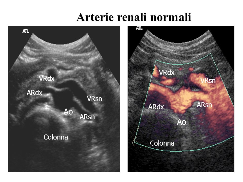 Ao ARdx VRdx Ao ARdx ARsn VRsn Colonna Arterie renali normali ARsn VRsn VRdx