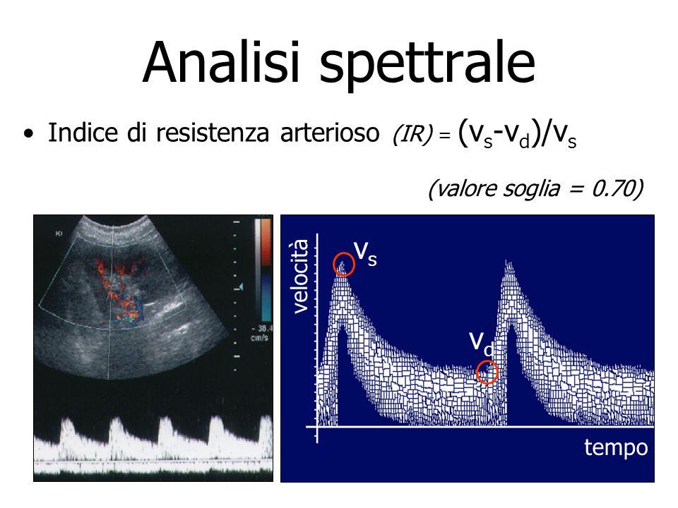 Indice di resistenza arterioso (IR) = (v s -v d )/v s velocità tempo vsvs vdvd (valore soglia = 0.70)