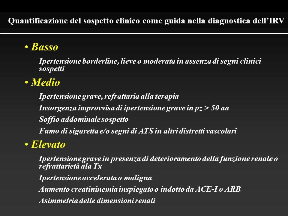 Quantificazione del sospetto clinico come guida nella diagnostica dellIRV Basso Ipertensione borderline, lieve o moderata in assenza di segni clinici