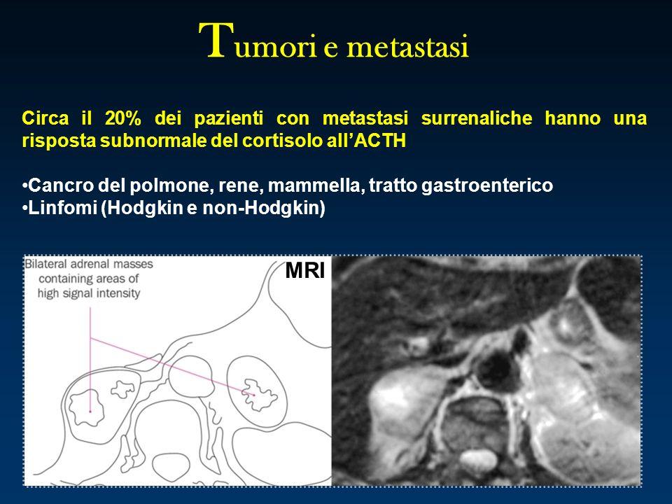 T umori e metastasi Circa il 20% dei pazienti con metastasi surrenaliche hanno una risposta subnormale del cortisolo allACTH Cancro del polmone, rene,