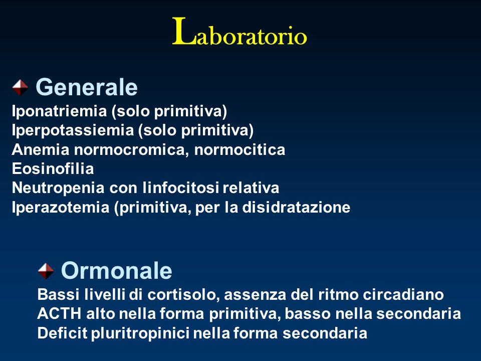 L aboratorio Generale Iponatriemia (solo primitiva) Iperpotassiemia (solo primitiva) Anemia normocromica, normocitica Eosinofilia Neutropenia con linf
