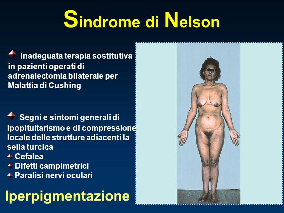 S indrome di N elson Inadeguata terapia sostitutiva in pazienti operati di adrenalectomia bilaterale per Malattia di Cushing Segni e sintomi generali
