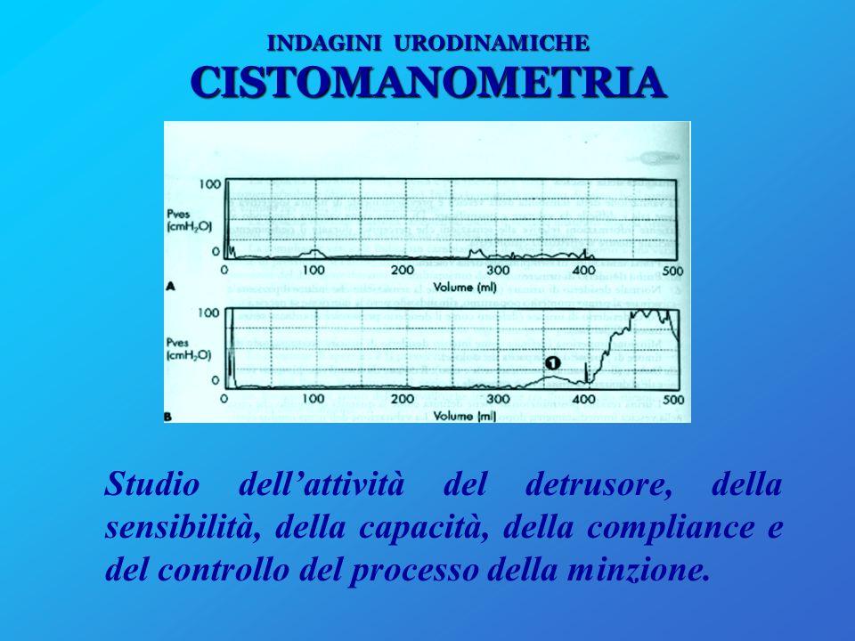 INDAGINI URODINAMICHE PROFILO PRESSORIO URETRALE Studio atto a verificare, qualificare e quantificare un eventuale deficit uretrale.
