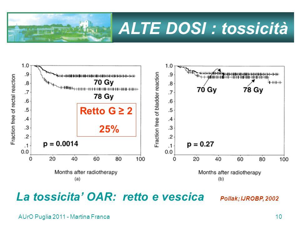 AUrO Puglia 2011 - Martina Franca10 ALTE DOSI : tossicità Retto G 2 25% La tossicita OAR: retto e vescica Pollak; IJROBP, 2002