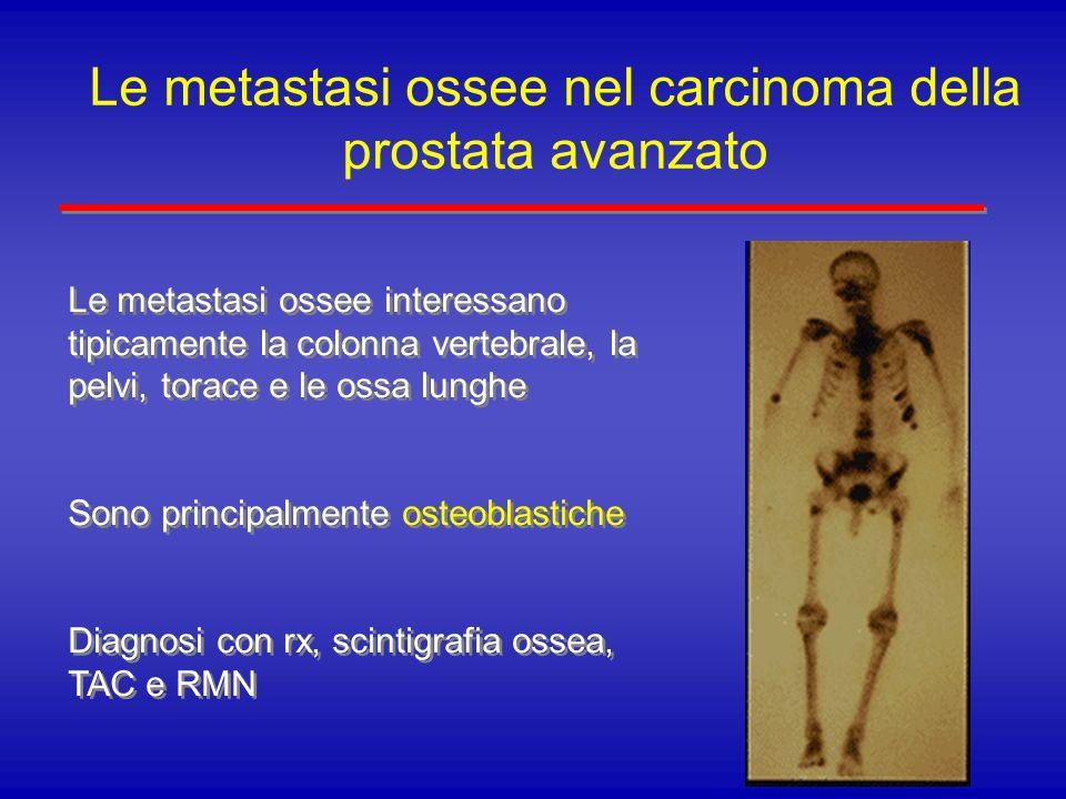 Le metastasi ossee nel carcinoma della prostata avanzato Le metastasi ossee interessano tipicamente la colonna vertebrale, la pelvi, torace e le ossa