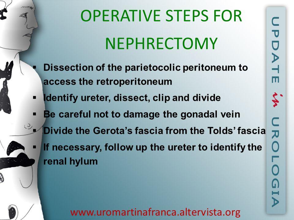 www.uromartinafranca.altervista.org OPERATIVE STEPS FOR NEPHRECTOMY Dissection of the parietocolic peritoneum to access the retroperitoneum Identify u