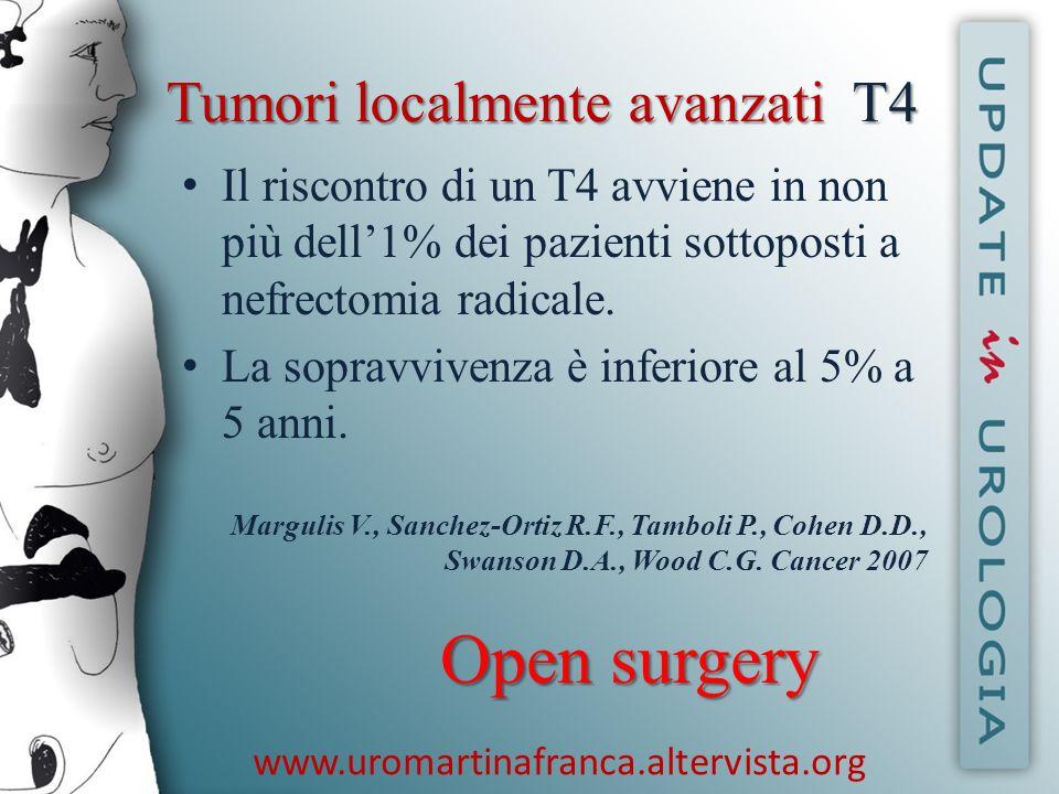 www.uromartinafranca.altervista.org Tumori localmente avanzatiT4 Tumori localmente avanzati T4 Il riscontro di un T4 avviene in non più dell1% dei paz