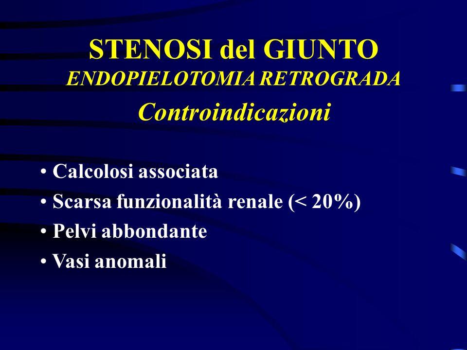 STENOSI del GIUNTO ENDOPIELOTOMIA RETROGRADA Calcolosi associata Scarsa funzionalità renale (< 20%) Pelvi abbondante Vasi anomali Controindicazioni