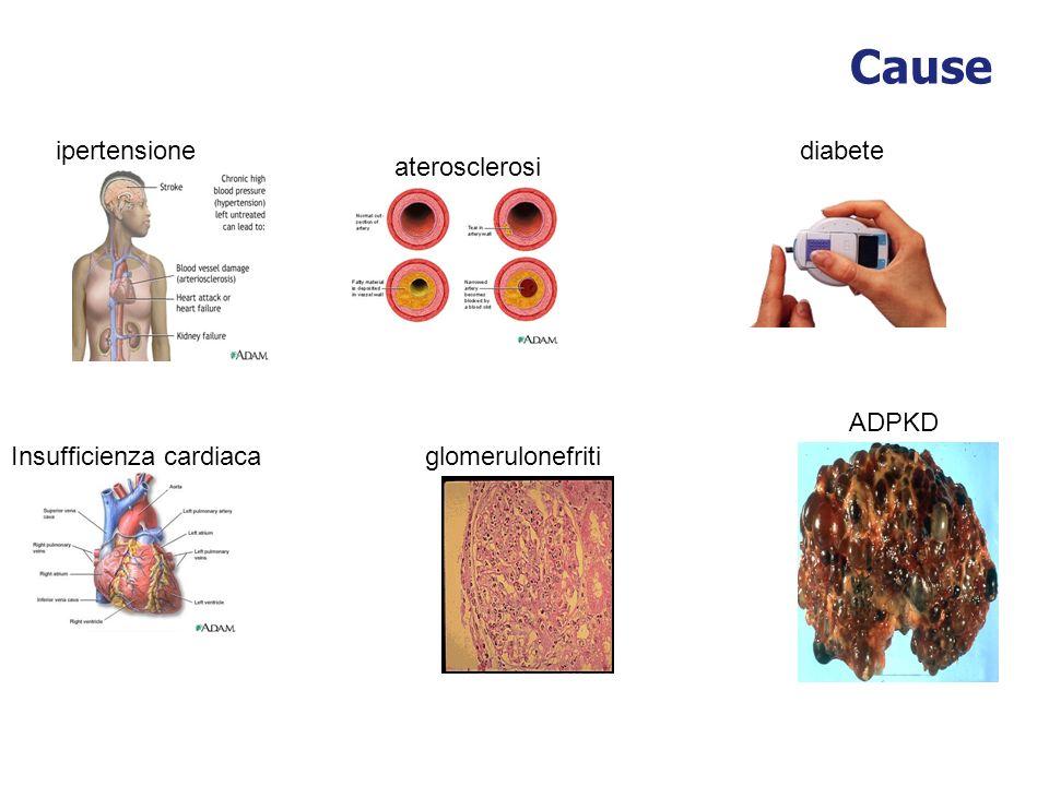 Cause ipertensione glomerulonefritiInsufficienza cardiaca diabete aterosclerosi ADPKD
