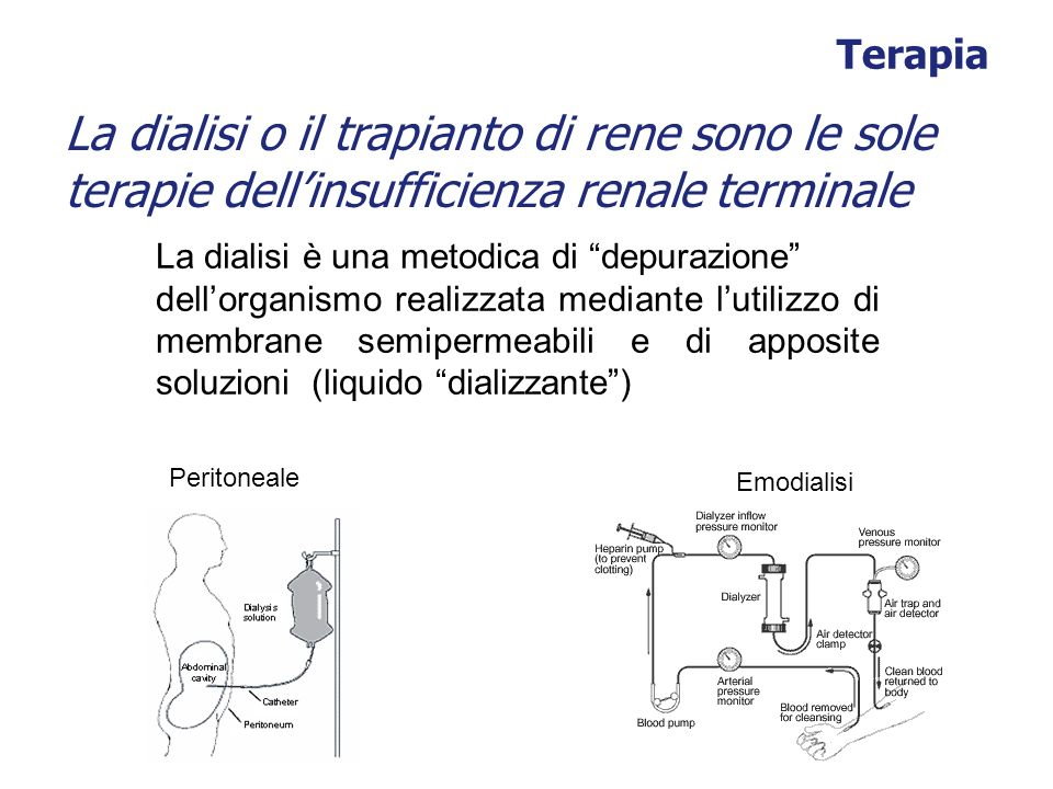 Terapia La dialisi o il trapianto di rene sono le sole terapie dellinsufficienza renale terminale Peritoneale Emodialisi La dialisi è una metodica di