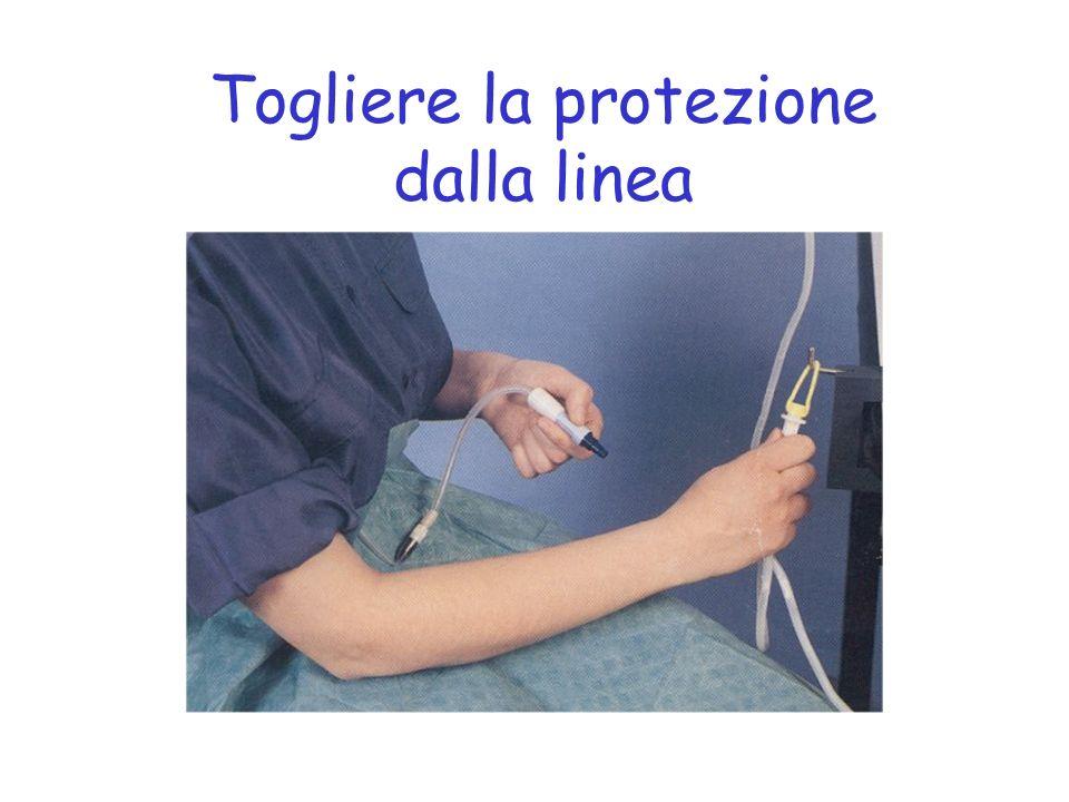 Togliere la protezione dalla linea