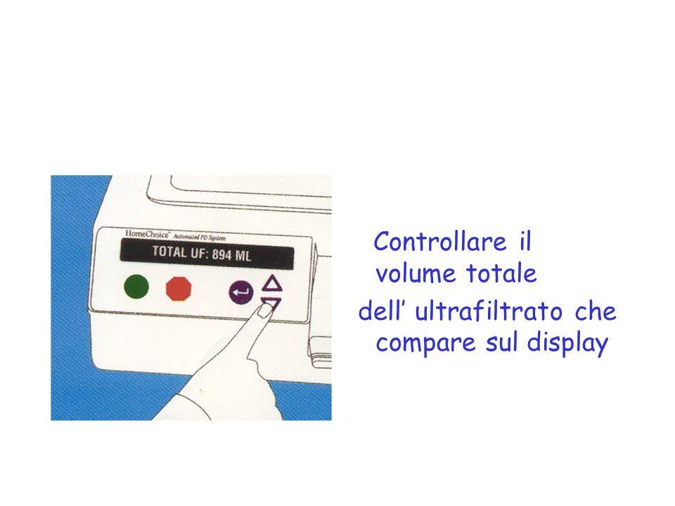 Controllare il volume totale dell ultrafiltrato che compare sul display