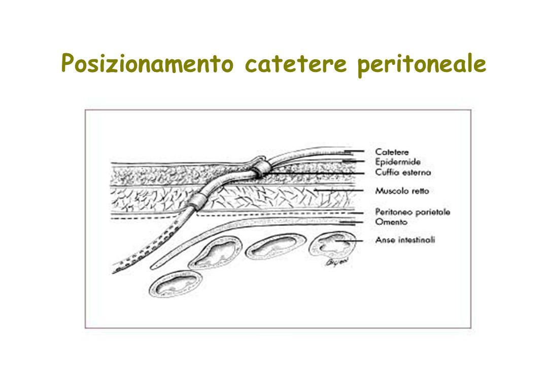 Posizionamento catetere peritoneale