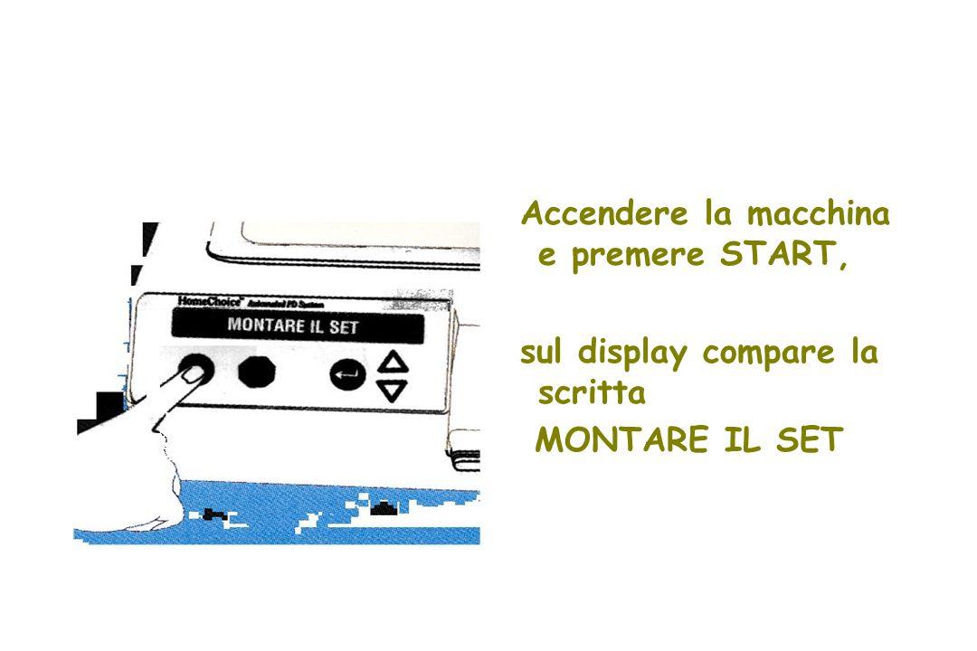 Accendere la macchina e premere START, sul display compare la scritta MONTARE IL SET