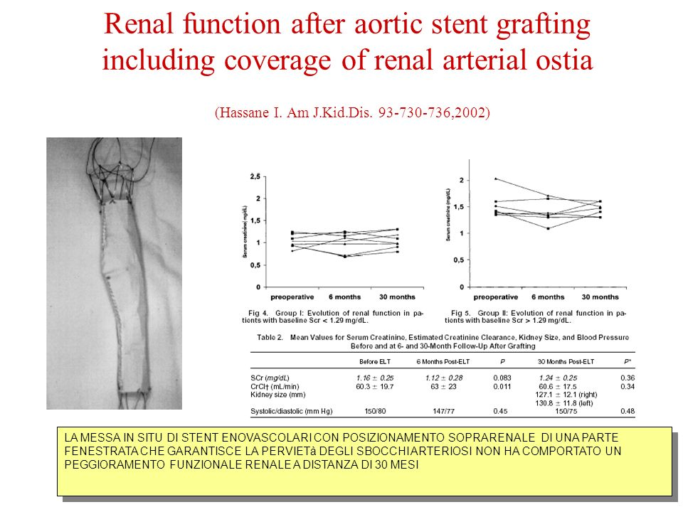 Renal function after aortic stent grafting including coverage of renal arterial ostia (Hassane I.