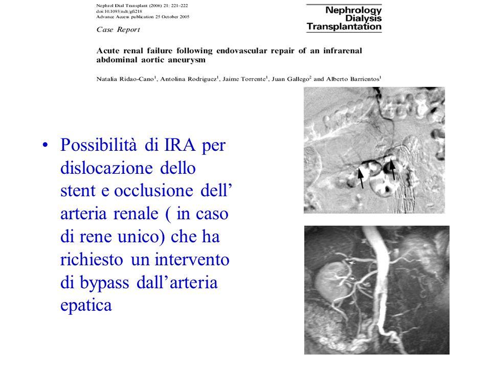 Possibilità di IRA per dislocazione dello stent e occlusione dell arteria renale ( in caso di rene unico) che ha richiesto un intervento di bypass dallarteria epatica