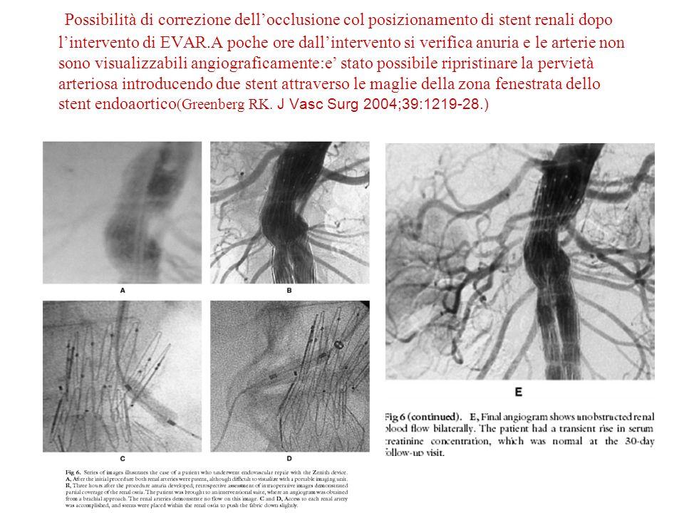Possibilità di correzione dellocclusione col posizionamento di stent renali dopo lintervento di EVAR.A poche ore dallintervento si verifica anuria e le arterie non sono visualizzabili angiograficamente:e stato possibile ripristinare la pervietà arteriosa introducendo due stent attraverso le maglie della zona fenestrata dello stent endoaortico (Greenberg RK.