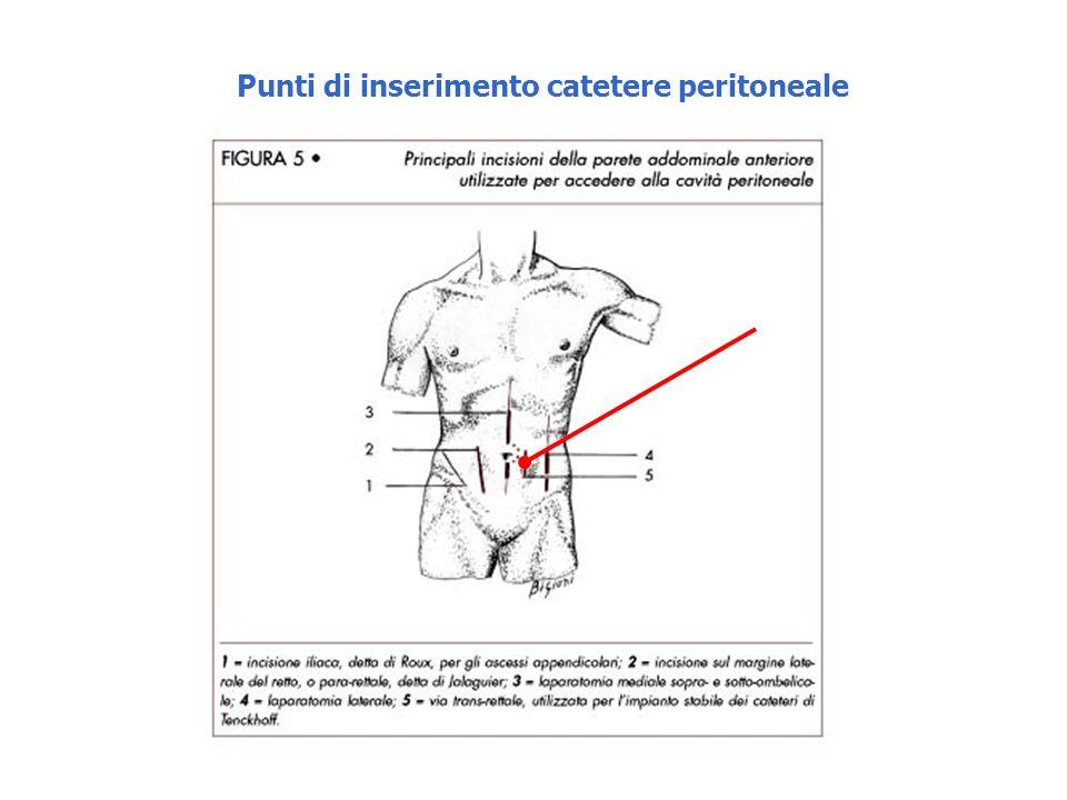 Punti di inserimento catetere peritoneale