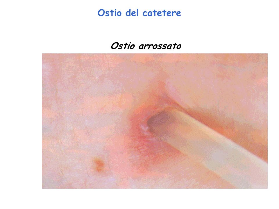 Ostio del catetere Ostio arrossato