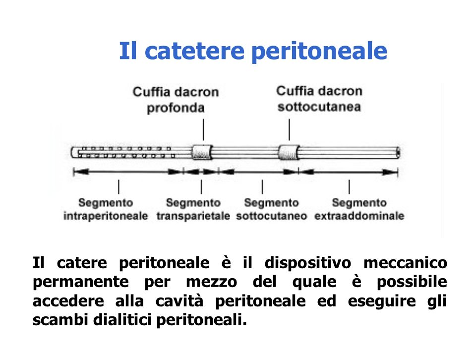 Il catere peritoneale è il dispositivo meccanico permanente per mezzo del quale è possibile accedere alla cavità peritoneale ed eseguire gli scambi dialitici peritoneali.