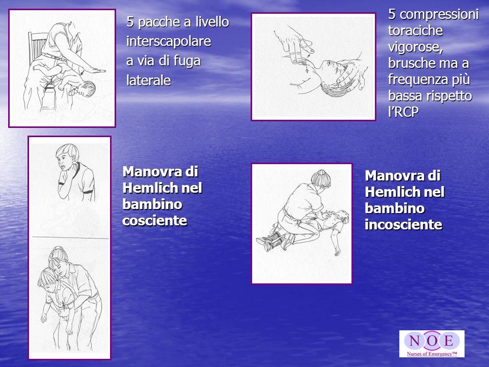 5 pacche a livello interscapolare a via di fuga laterale 5 compressioni toraciche vigorose, brusche ma a frequenza più bassa rispetto lRCP Manovra di