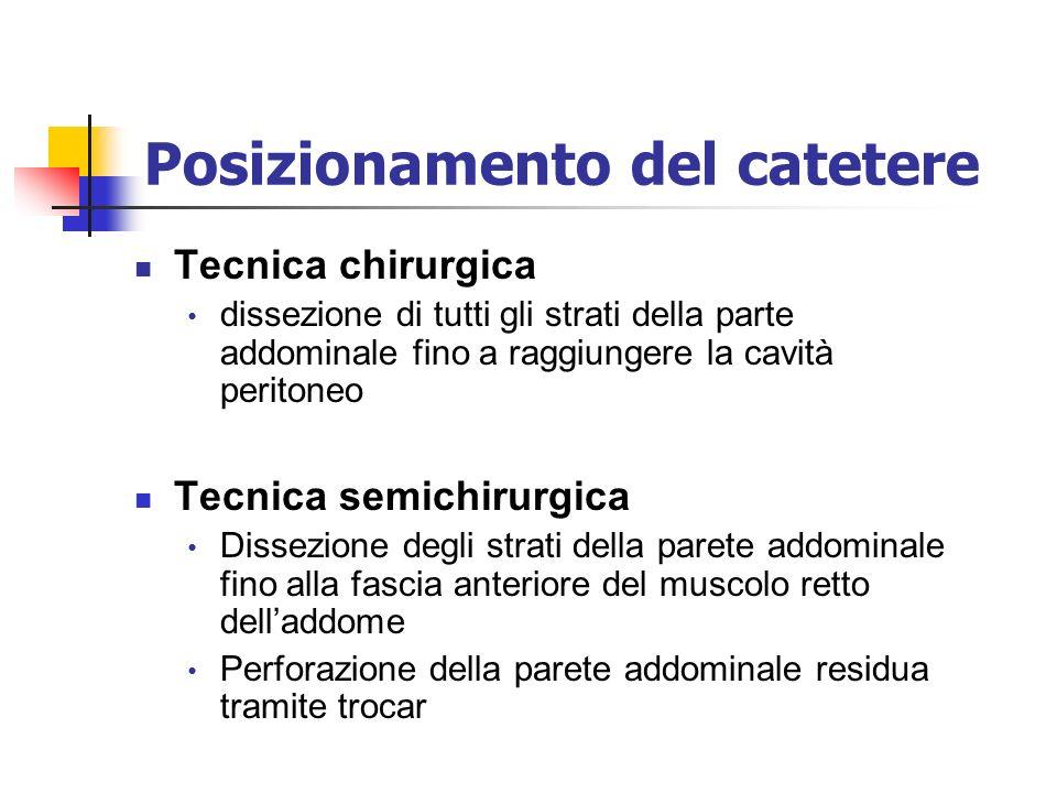 Posizionamento del catetere Tecnica chirurgica dissezione di tutti gli strati della parte addominale fino a raggiungere la cavità peritoneo Tecnica se