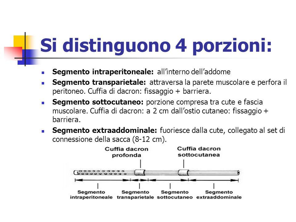Si distinguono 4 porzioni: Segmento intraperitoneale: allinterno delladdome Segmento transparietale: attraversa la parete muscolare e perfora il perit