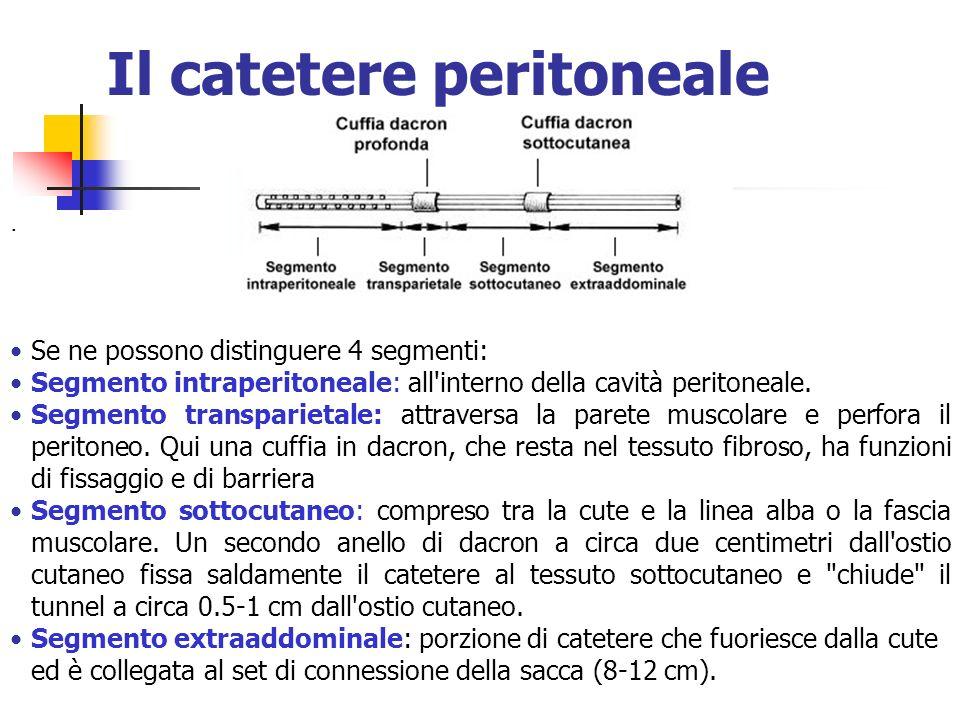 Il catetere peritoneale. Se ne possono distinguere 4 segmenti: Segmento intraperitoneale: all'interno della cavità peritoneale. Segmento transparietal