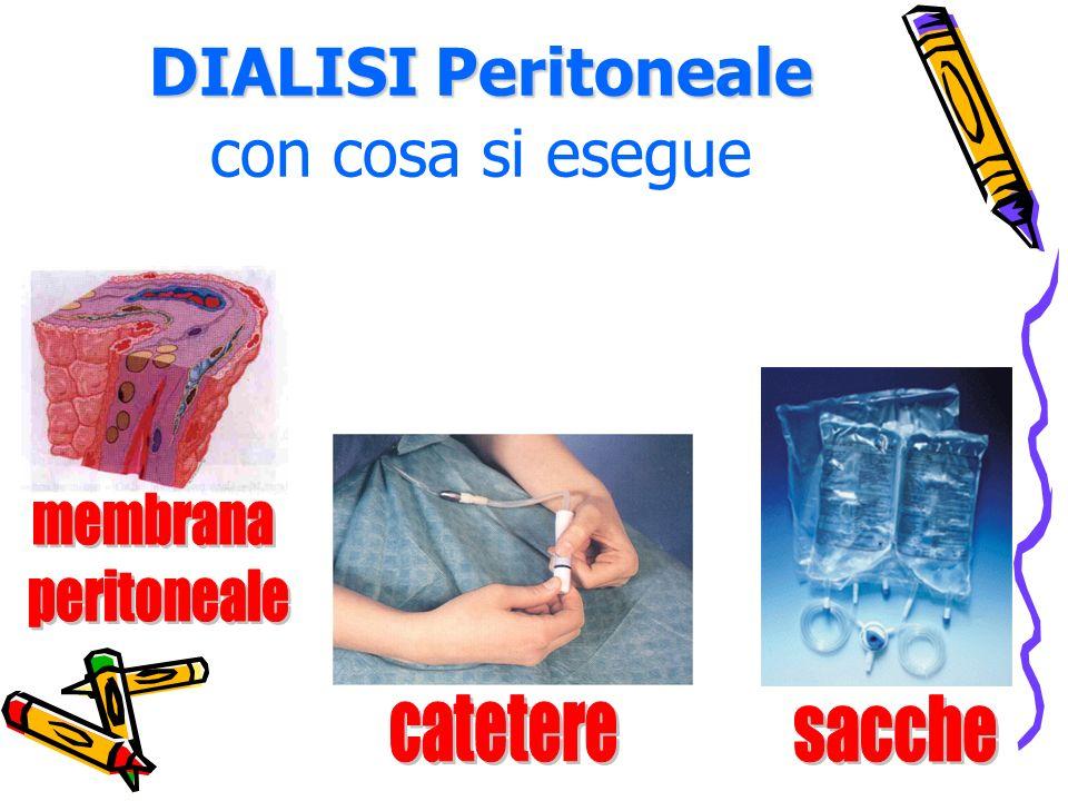 DIALISI Peritoneale DIALISI Peritoneale con cosa si esegue