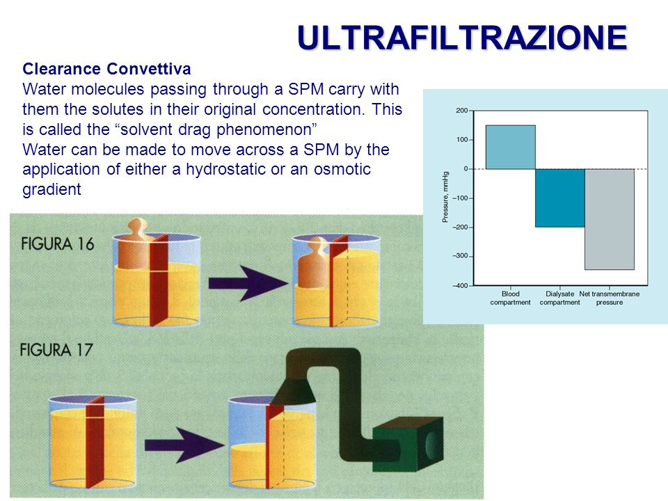 ULTRAFILTRAZIONE Clearance Convettiva Water molecules passing through a SPM carry with them the solutes in their original concentration.