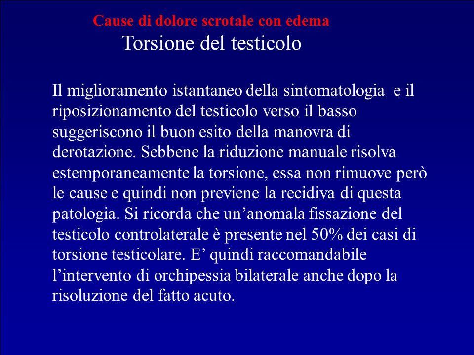 Cause di dolore scrotale con edema Torsione del testicolo Il miglioramento istantaneo della sintomatologia e il riposizionamento del testicolo verso i