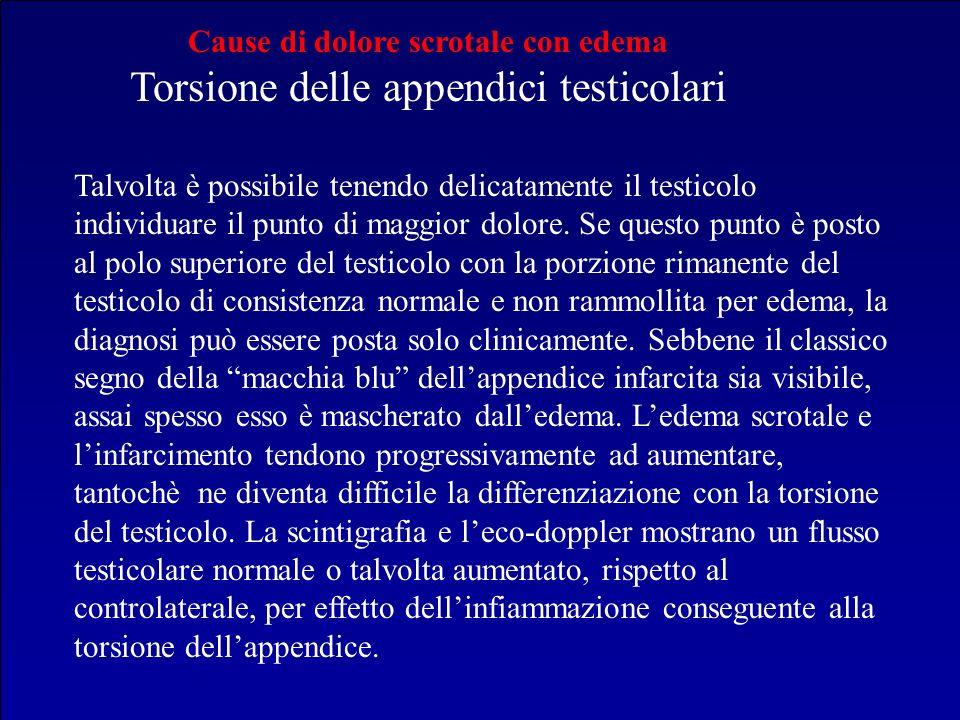 Cause di dolore scrotale con edema Torsione delle appendici testicolari Talvolta è possibile tenendo delicatamente il testicolo individuare il punto d