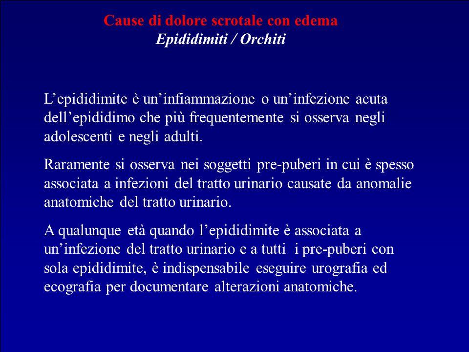 Cause di dolore scrotale con edema Epididimiti / Orchiti Lepididimite è uninfiammazione o uninfezione acuta dellepididimo che più frequentemente si os