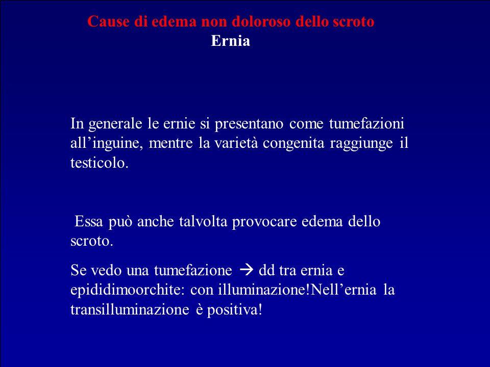 Cause di edema non doloroso dello scroto Ernia In generale le ernie si presentano come tumefazioni allinguine, mentre la varietà congenita raggiunge i