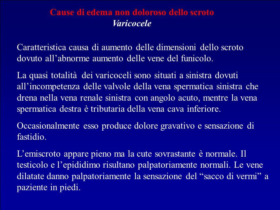 Cause di edema non doloroso dello scroto Varicocele Caratteristica causa di aumento delle dimensioni dello scroto dovuto allabnorme aumento delle vene
