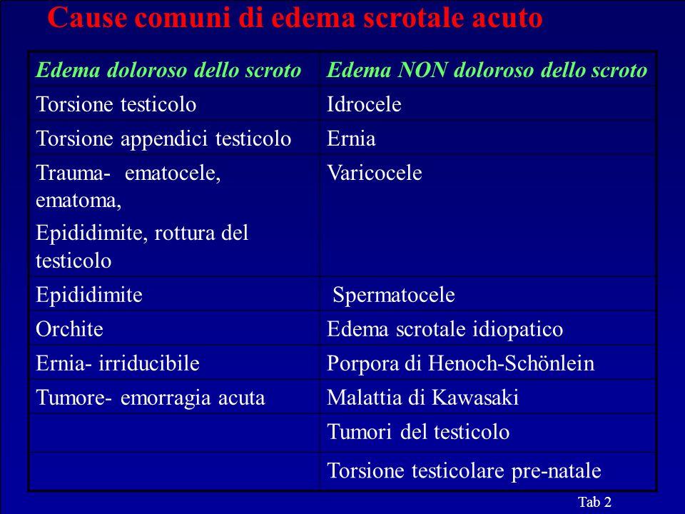 Cause comuni di edema scrotale acuto Tab 2 Edema doloroso dello scrotoEdema NON doloroso dello scroto Torsione testicoloIdrocele Torsione appendici te