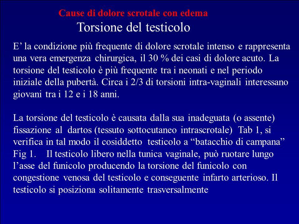 Cause di dolore scrotale con edema Torsione del testicolo E la condizione più frequente di dolore scrotale intenso e rappresenta una vera emergenza ch