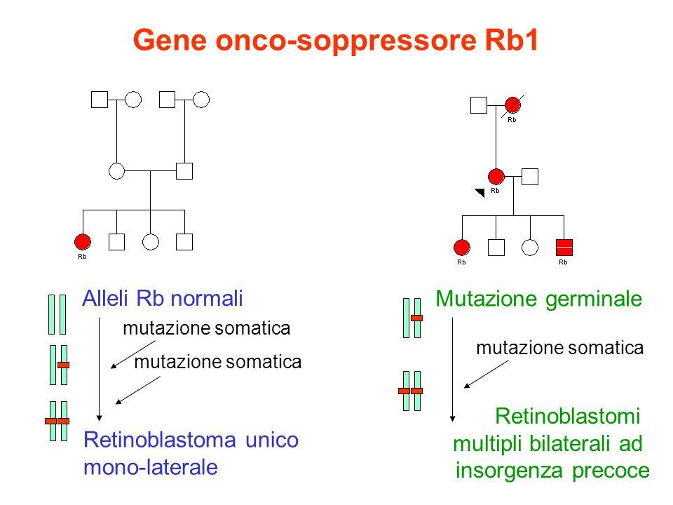 Gene onco-soppressore Rb1 Alleli Rb normali mutazione somatica Retinoblastoma unico mono-laterale Mutazione germinale mutazione somatica Retinoblastom