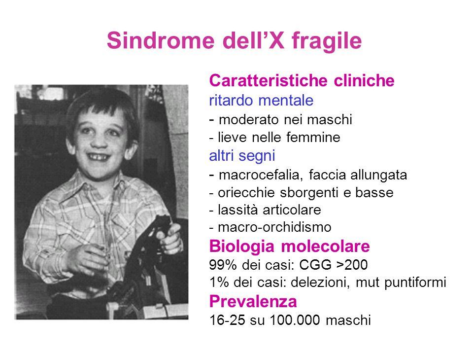 Sindrome dellX fragile Caratteristiche cliniche ritardo mentale - moderato nei maschi - lieve nelle femmine altri segni - macrocefalia, faccia allunga