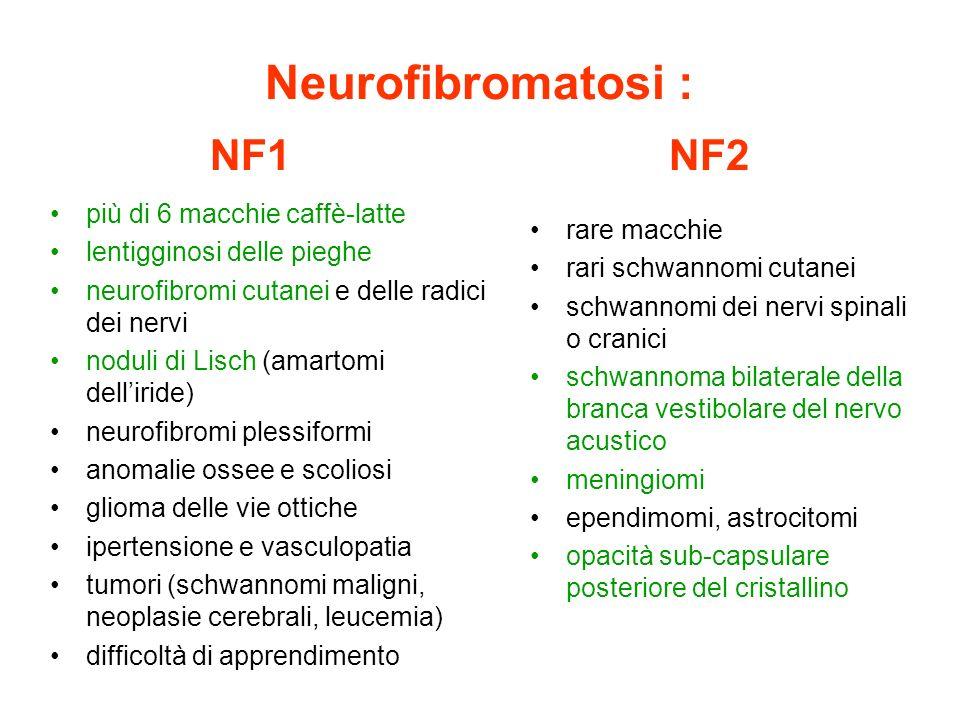 più di 6 macchie caffè-latte lentigginosi delle pieghe neurofibromi cutanei e delle radici dei nervi noduli di Lisch (amartomi delliride) neurofibromi
