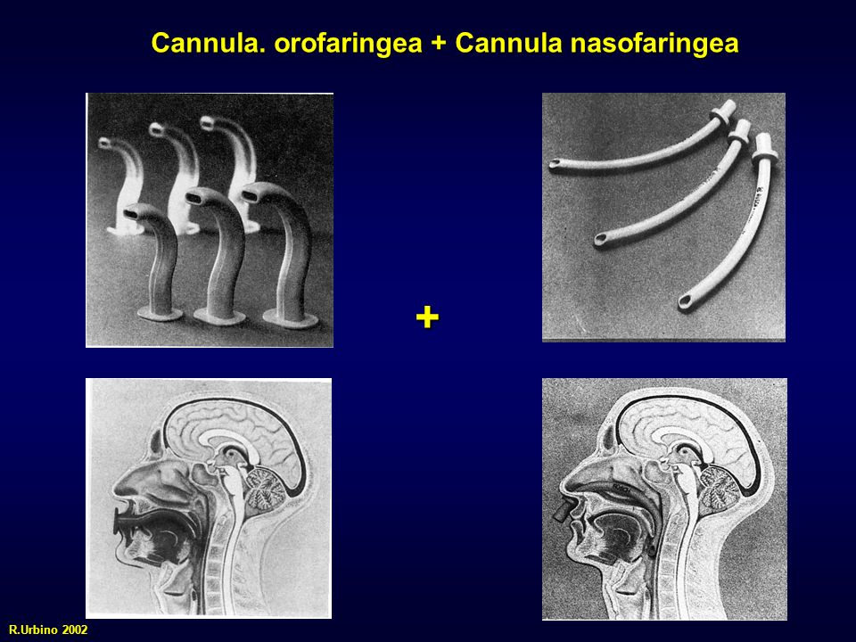 Cannula. orofaringea + Cannula nasofaringea + R.Urbino 2002